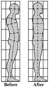 structbody
