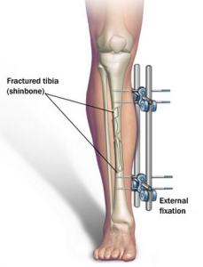 Limb Lengthening Surgery