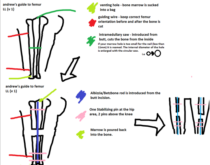 Guide To Femur