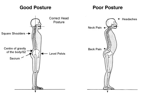 Improving Your Posture And Straightening The Back To ...