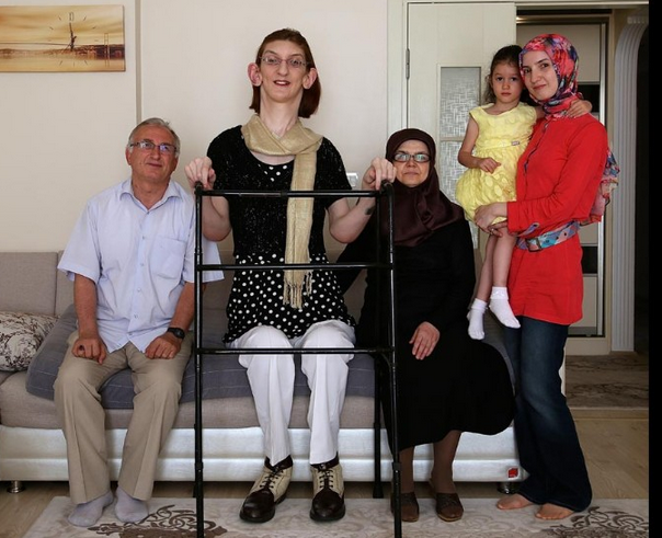 world's tallest teenage girl karabuk rumeysa gelgi might suffer, Skeleton