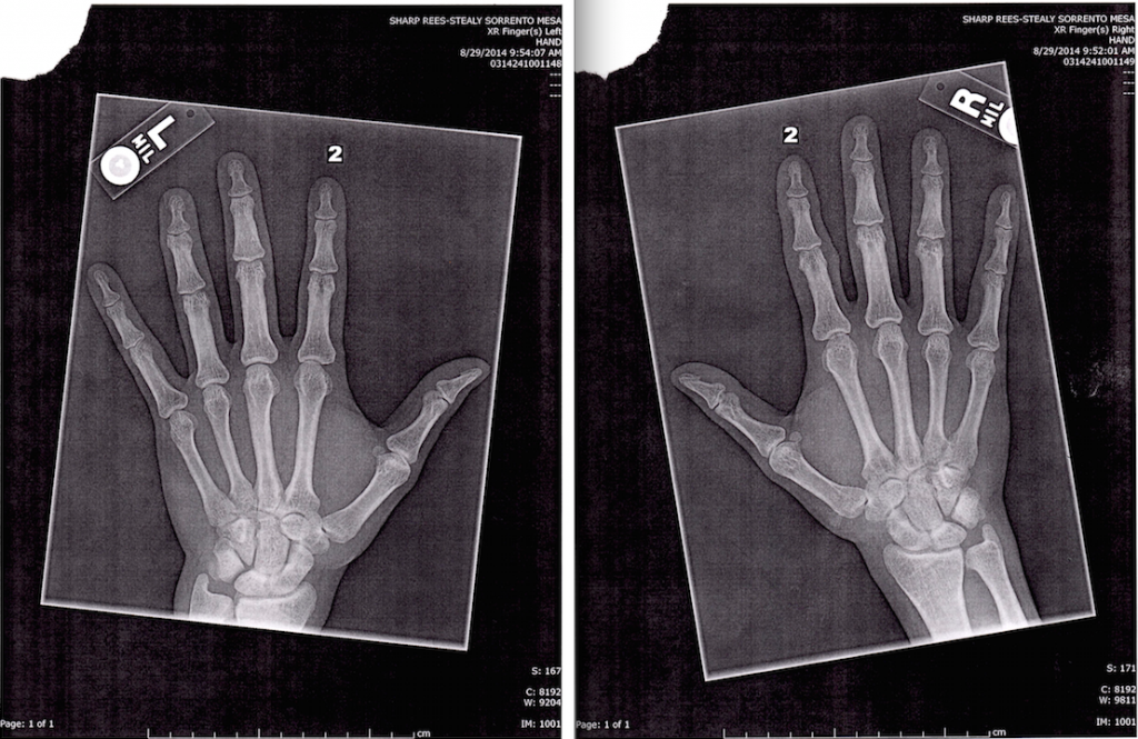 X Rays of Metacarpal