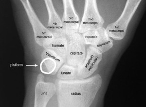 wrist-labeled-xray