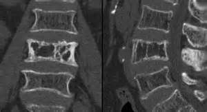 pagets disease spine