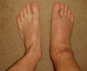 one-swollen-foot
